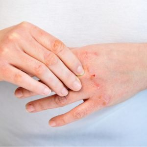 Dry, Cracked Hands